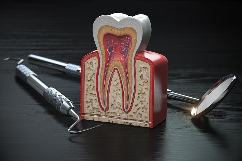 Tooth model cross section with dental tools on black wooden tabl