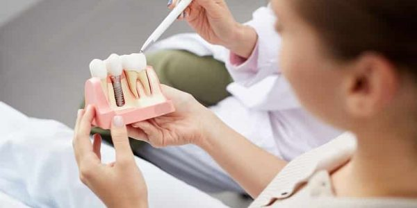 Implants Ideal Solution to Get Back Lost Teeth