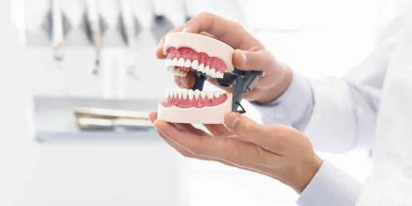 Improve Your Appearance with Dental Bridges