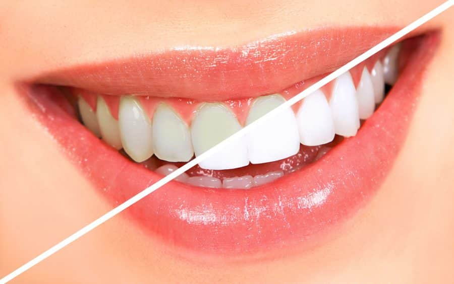 Teeth-Whitening-900x564