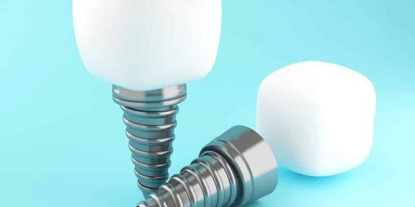 Dental Implants Gives Us A Youthful Smile