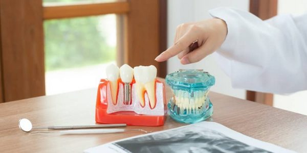 Get Dental Implants As The Permanent Solution