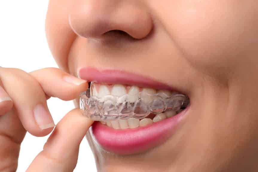 pros-and-cons-of-invisalign